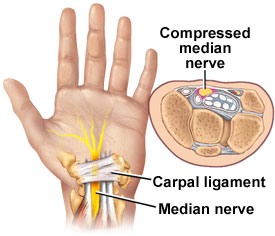 Carpal Tunnel: Anatomy, Syndrome and Exercises